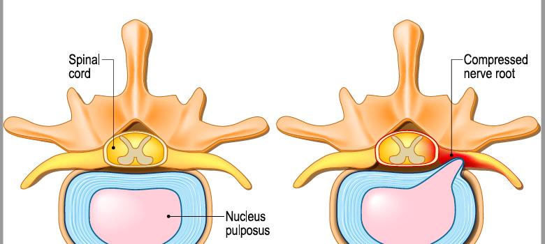 Herniated lumbar disc