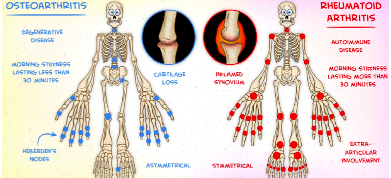 Osteopathy West London: What is the difference between OA and RA?