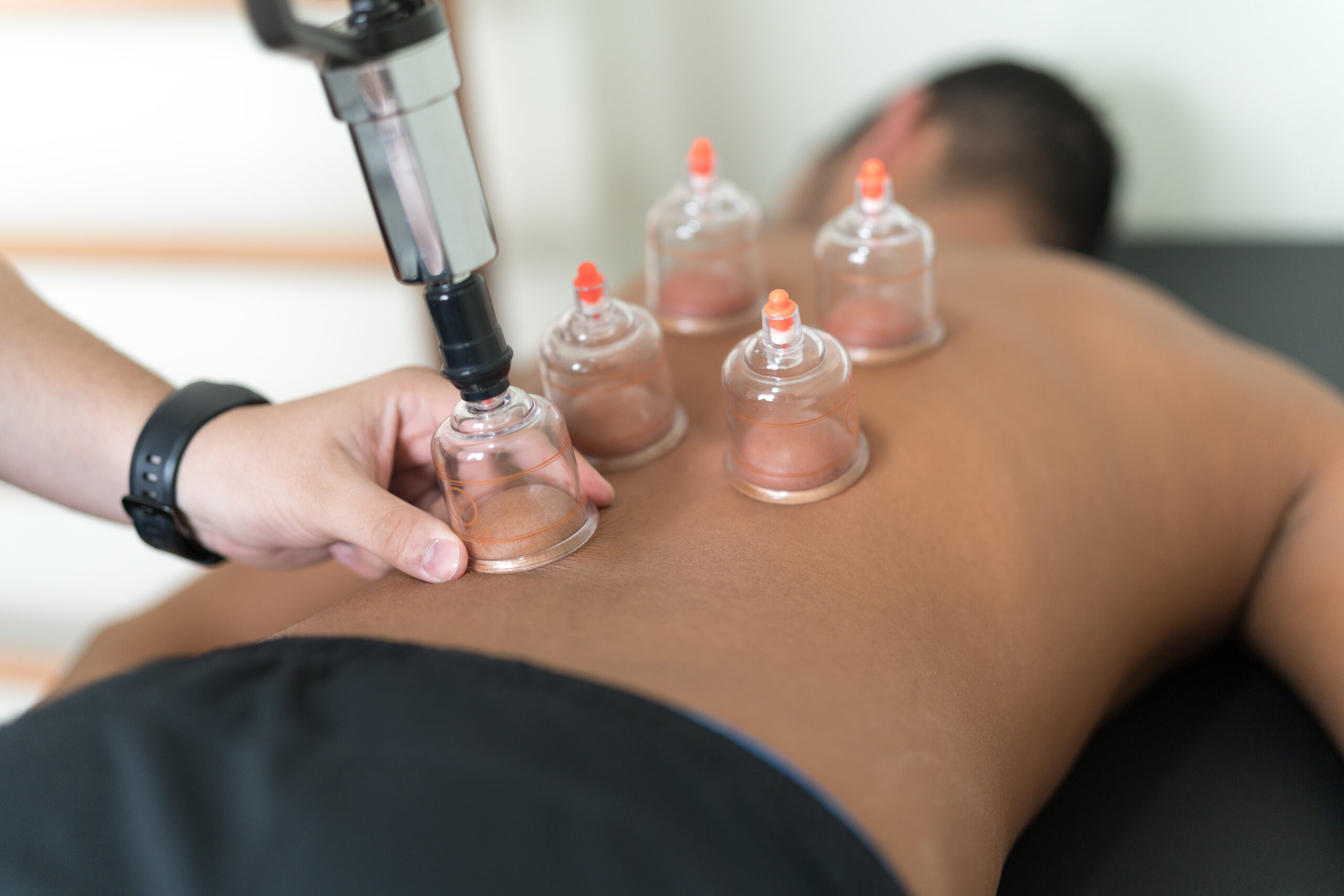 Cupping Therapy at Osteopathy West London